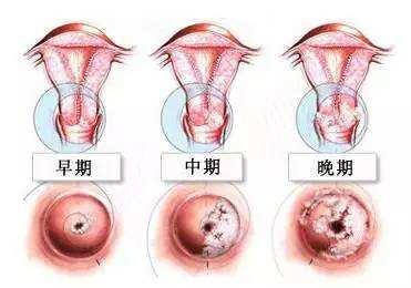 做试管婴儿前怎么提升卵子质量?