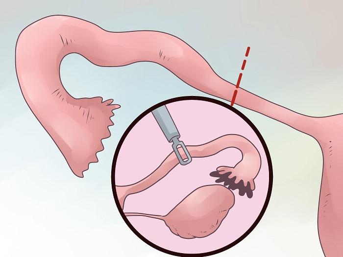 要想诊断输卵管粘连的问题,那最主要的办法就是通过x线的子宫输卵管造影检查,而发生粘连主要分为两种现象,近端跟远端.
