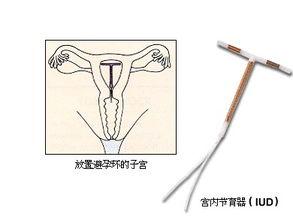 带环受孕的孩子是否能要