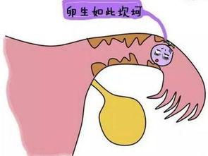 一侧输卵管通而不畅的原因有哪些?