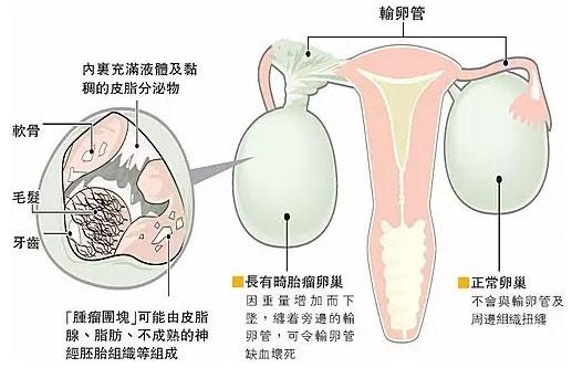 卵巢肿瘤的症状有哪些?