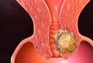 女性子宫颈癌会遗传吗?