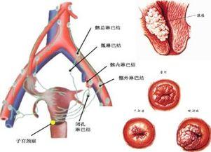宫颈浸润癌有哪些症状?