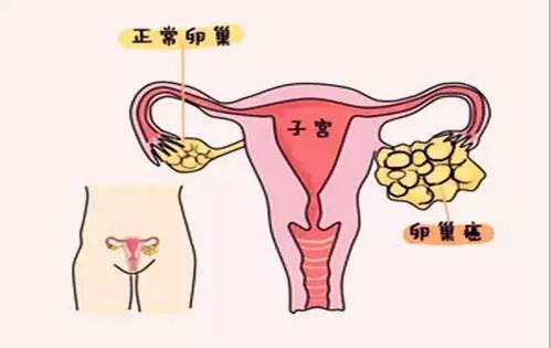 60 卵巢肿瘤患者一经确诊已是晚期