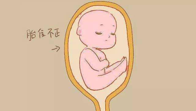 胎膜破裂是什么?