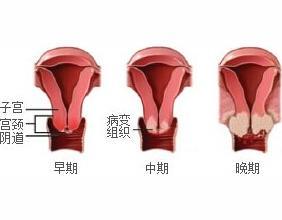备孕准妈妈注意3项孕前检查一定要做