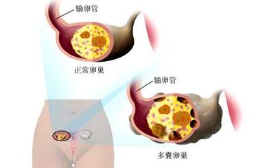 孕妇咽喉痛怎么办 缓解方法介绍