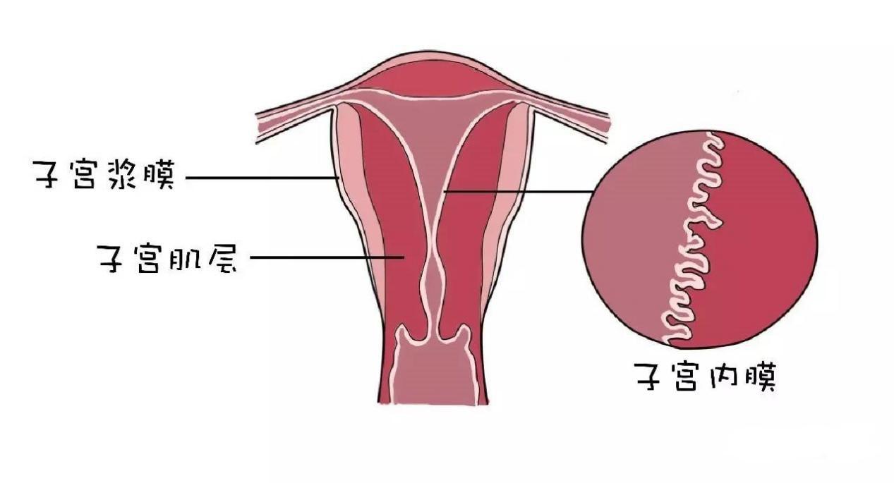子宫移位受孕难 该如何预防子宫移位