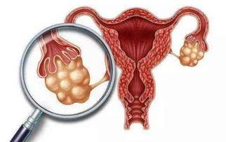 为什么有些孕妇的肚子是圆的 有些是尖的