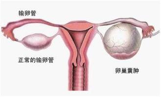 孕妈妈要注意这三点 不然宝宝容易先天畸形
